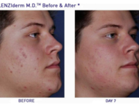 Obagi Clenziderm, Acne, Medical Grade