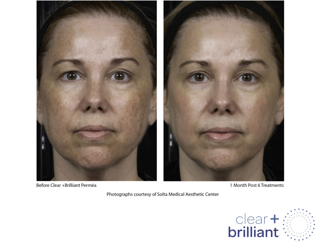 Clear + Brilliant Fractional Laser - Skin Glow & Anti-Ageing Secret Revealed