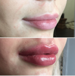 HAVE YOU EVER CONSIDERED GETTING LIP FILLERS?