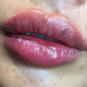 Lip filler by Dr Ricky Sia, Juvederm, Juvaderm, Restylane, Emervel, lip injections, lip enhancement